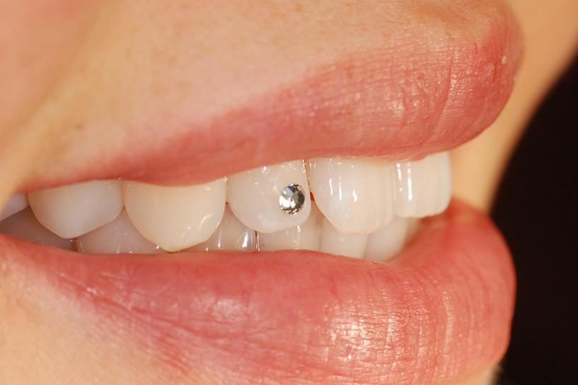 Wenn der Zahn der Zeit an den Zähnen nagt